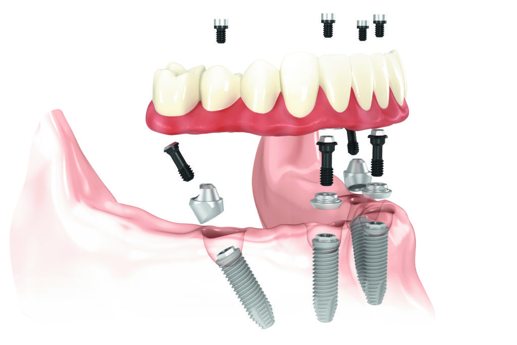 3D Rendering of dental implants and how they fit into the jaw and mouth.