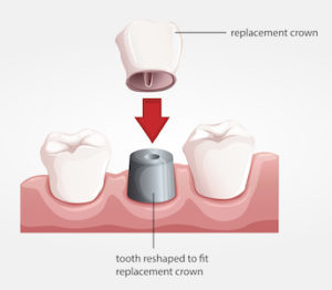 3D image of a dental crown and how it fits over a reshaped too.